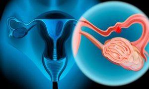 Día del cáncer de ovarios
